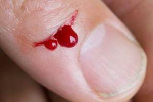'Tôi từng đau đớn đợi chờ vì không có máu'