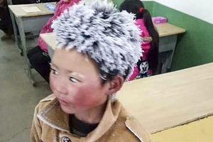 Cậu bé 'tóc đóng băng' ở Trung Quốc bị buộc thôi học ở trường mới sau 1 tuần