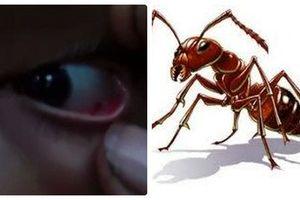 Gần 100 con kiến làm tổ trong mắt bé gái 11 tuổi
