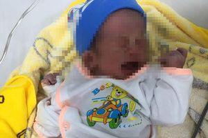 Cắt khối u quái hơn 1 kg ra khỏi người em bé sơ sinh