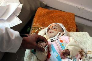 Tổng thống Iran quan ngại về khủng hoảng nhân đạo tại Yemen