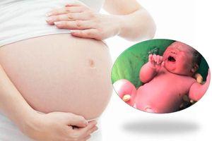 Mang thai to nguy hiểm cho cả mẹ và con