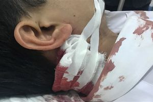 Tin mới vụ dùng dao bầu lao tới đâm thẳng gáy CSGT