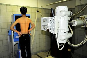 TPHCM: Chụp X-quang lưu động miễn phí tầm soát bệnh lao