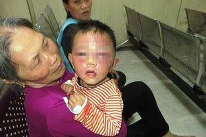 Triệu tập bố dượng đánh con riêng 2 tuổi của vợ phù nề, bầm tím mặt