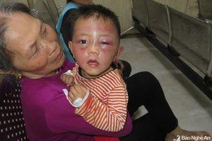 Nghệ An: Điều tra vụ bố dượng bạo hành con riêng 2 tuổi của vợ nhập viện