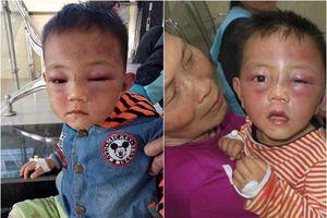 Cha dượng đánh đập bé 2 tuổi đến nhập viện: Lời khai gây phẫn nộ