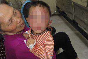 Công an triệu tập bố dượng nghi bạo hành con riêng của vợ