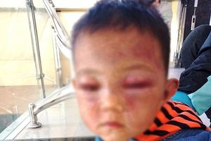 Hỗ trợ toàn bộ chi phí chữa trị cháu bé nghi bị cha dượng đánh dã man ở Nghệ An