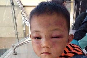 Nghệ An: Tạm giữ đối tượng bạo hành con riêng của vợ