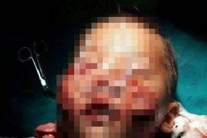 Hy hữu bé 3 tuổi bị chó cắn rách mặt khi sang chú chơi
