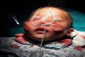 Bé 29 tháng tuổi bị chó cắn rách mặt và những quy tắc an toàn cho con bố mẹ phải nhớ