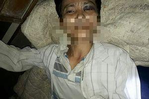 Thanh Hóa: Con dùng súng bắn bố trọng thương