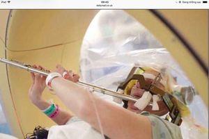 Bệnh nhân thổi sáo trong khi đang được phẫu thuật não