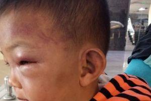 Không truy cứu trách nhiệm hình sự bố dượng bạo hành bé 2 tuổi