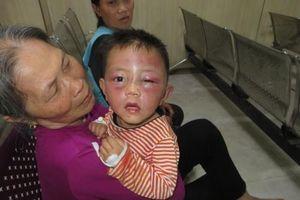 Cha dượng đánh bé trai 2 tuổi tím mặt: Không truy cứu trách nhiệm hình sự