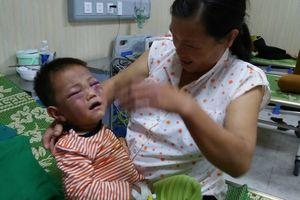 Không truy cứu trách nhiệm hình sự người cha dượng đánh con riêng của vợ nhập viện