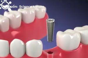 Mô phỏng một số quá trình làm đẹp cho răng miệng