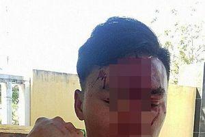 Cán bộ kiểm lâm bị 2 phụ nữ đánh gãy xương mũi