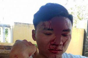Truy xét vụ cán bộ kiểm lâm bị 2 phụ nữ đánh gãy xương mũi