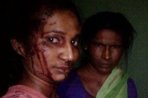 Ấn Độ có 'nữ Võ Tòng'
