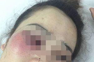 Mâu thuẫn tại quán bánh xèo, cô gái bị nam thanh niên đánh nhập viện