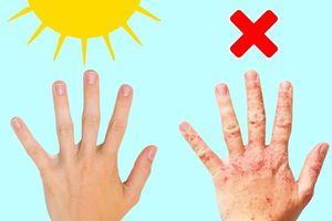 Chuyện gì sẽ xảy ra với cơ thể bạn nếu như thiếu vitamin 'ánh nắng mặt trời'?