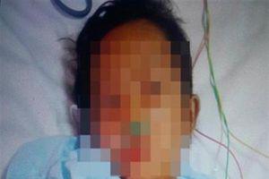 Tận cùng độc ác: Mẹ kế ép con riêng 6 tuổi của chồng uống rượu pha thuốc diệt cỏ