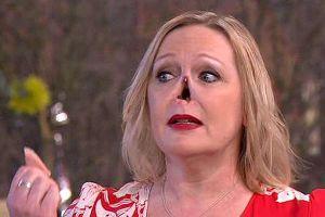 Người phụ nữ gây sửng sốt khi 'tháo' mũi ngay trên sóng truyền hình