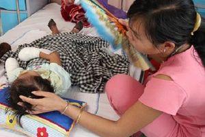 Sau đêm sốt, bé gái 3 tuổi phải cắt cụt tứ chi do bị hoại tử hiếm gặp