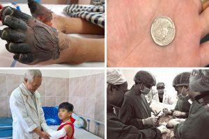 Một vòng bệnh viện: Cứu sống bệnh nhân bị đâm thấu ngực