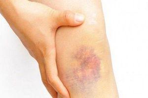 Vết bầm tự nhiên xuất hiện là dấu hiệu cảnh báo bệnh, tuyệt đối đừng bỏ qua