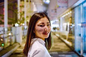 Cô gái mặt chàm 'thách thức' thành kiến của xã hội về vẻ ngoài nữ giới
