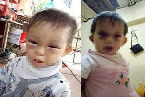 Hà Nội: Bé gái 14 tháng tuổi thâm tím 2 mắt sau khi trở về từ Cơ sở mầm non?