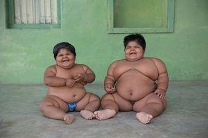 Hai chị em béo phì phải cắt bớt dạ dày để giảm cân