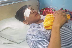 Nam thanh niên bị chém bể mắt, đứt mũi vì 'hỗn láo' với đàn anh