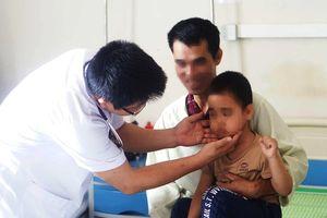 Bé trai 5 tuổi bỗng mọc lông rậm khắp mặt sau tiêm corticoid