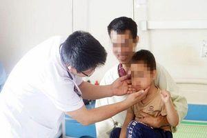 Bé trai 5 tuổi mọc ria mép do lạm dụng corticoid