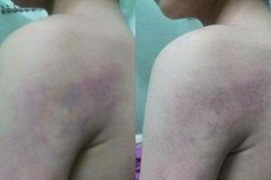 Cô giáo bị tố đánh học sinh lớp 1 thâm tím người