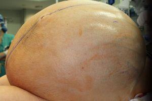 Cắt bỏ khối u nặng 60kg trong buồng trứng bệnh nhân Mỹ