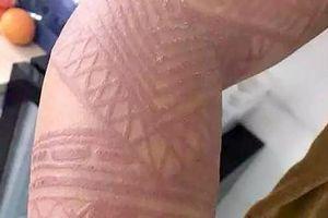 Du khách Bali cảnh cáo henna tattoo giả có thể gây hại sức khỏe