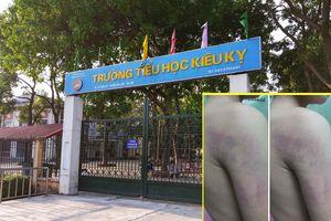 Kỷ luật cảnh cáo cô giáo đánh bầm tím người học sinh lớp 1 ở Hà Nội