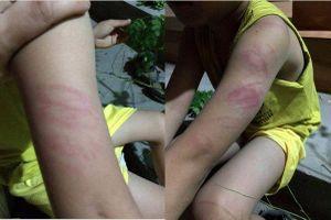 Lại thêm giáo viên đánh thâm tím tay học sinh tại Thái Bình