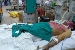 Tự mua thuốc chữa thủy đậu, nam thanh niên 28 tuổi bị suy đa tạng khó qua khỏi