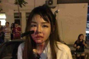 Giữa đường gặp cướp, bị dao cắm giữa mặt, cô gái vẫn bình tĩnh ngồi chờ người đến cứu