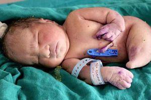 Bé sơ sinh mắc hội chứng 'nàng tiên cá' chào thế giới 15 phút thì qua đời