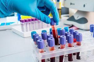 Bước tiến y học đột phá: Xét nghiệm máu có thể phát hiện sớm 10 loại ung thư