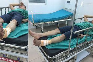 Khởi tố vụ nhân viên phụ xe bị nhóm đối tượng hành hung, cắt gân chân