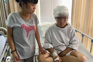 Tai nạn kinh hoàng khiến cô bé lớp 11 bị bong cả da đầu, người mẹ xót xa nói không nên lời