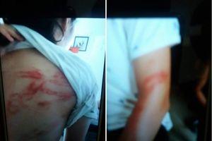 Hà Nội: Bà ngoại tố hai cháu gái bị bố bạo hành dã man